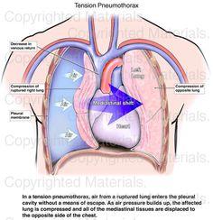 Tension Pneumothorax : Medical Exhibit