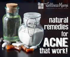 Natural Remedies for Acne That Work - Acne is a pain for our vanity, and can cause physical pain as well. Instead of using harsh creams full of chemicals and pills that can cause birth defects and organ failure, let's look at some natural options that work even better and for a lasting amount of time.