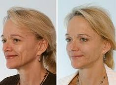 """Botox Or """"Botulinum Toxin A"""" Before And After Pictures Botox Before And After, Before And After Pictures, Clostridium Botulinum, Botox Face, Botulinum Toxin, First Photograph, Weight Management, Weight Loss Program, How To Lose Weight Fast"""