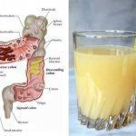 Watch This Video Daunting Home Remedies for Natural Colon Cleansing Ideas. Inconceivable Home Remedies for Natural Colon Cleansing Ideas. Homemade Colon Cleanse, Colon Cleanse Diet, Natural Colon Cleanse, Bowel Cleanse, Colon Detox, Ginger Juice, Apple Juice, Juice 2, Recipes