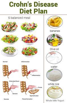 diet plan crohn's disease
