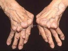 Arthritis Remedies Natural Cures for Arthritis Hands - Heres the astonishing arthritis relief remedy cure thats been kept hidden from the general public for over 50 years. Arthritis Hands, Arthritis Relief, Types Of Arthritis, Rheumatoid Arthritis, Pain Relief, Inflammatory Arthritis, Psoriasis Arthritis, Fit Bodies, Health And Fitness