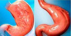 Como reduzir o seu estômago sem cirurgia e de forma 100% natural!