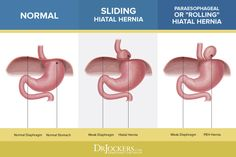 It is possible to have a hiatal hernia without knowing, Learn the common symptoms and natural support strategies for this health-draining condition. Pancreatitis Symptoms, Reflux Symptoms, Asthma Symptoms, Hiatus Hernia Diet, Hernia Exercises, Health And Nutrition, Gut Health, Health Fitness, Getting Rid Of Phlegm