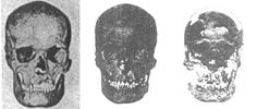 Boreby skulls compared from Northern Europe and the Ohio Valley. The Beaker People, who constructed Stonhenge contained Boreby, Dinaric and the Corded People