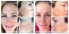 """Meet Suzanne Candello!! These are her personal results using REVERSE :)   """"This is ME after 2 weeks on our amazing product REVERSE Accelerator Pack!!! No more sun damage and dull skin!  I wouldn't be a consultant if I didn't believe in Rodan + Fields dermatological skin care so much!! It works.... and I am proof of it!"""" #changingskin #changinglives"""