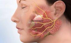 La parálisis facial puede afectar de forma muy importante la calidad de vida de la persona. Todos los síntomas que produce en la persona afectada ... Symptoms Of Neuropathy, Weights For Women, Bodybuilding Workouts, Lose Weight, Exercise, Tattoo, Car, Physical Therapy, Shape