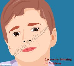 Excessive blinking in children can be a habit for many, but can also be a matter of concern in some cases. It is essential to know about the causes of excessive blinking, natural remedies and ways to stop children from blinking excessively. Eye Pain, Information Center, Art Illustrations, Parenting, Eyes, Children, Young Children, Boys, Kids