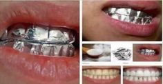 mixing baking soda, salt, and water to make a paste. You then apply this paste to your teeth and apply a layer of tin foil. Leave this for one hour, remove the foil, then brush normally. Repeat twice a week and watch as you get whiter teeth! Teeth Whitening Methods, Natural Teeth Whitening, Whitening Kit, Beauty Care, Diy Beauty, Beauty Hacks, Beauty Secrets, Beauty Tips, Beauty And More