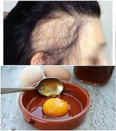 Doğal sağlık Recover Your Hair With Only These 3 Simple Materials! Natural Hair Care, Natural Hair Styles, Outdoor Fotografie, Hair Care Oil, Hair Remedies, Medicinal Herbs, Hair Health, Natural Medicine, Hair Videos