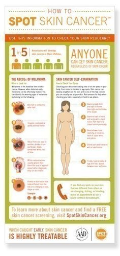 Anyone can get skin cancer, regardless of skin color. It is estimated that one in five Americans will be diagnosed with skin cancer in their lifetime. When caught early, skin cancer is highly treatable. Use the information in this graphic to check your skin regularly.