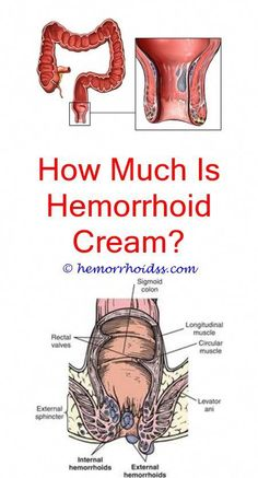 Amazing and Unique Tricks: Are Hemorrhoids Life Threatening? can a hernia cause hemorrhoids?What Are Bleeding Hemorrhoids? what to put on itchy hemorrhoids?Can A Hernia Cause Hemorrhoids? Natural Remedy For Hemorrhoids, Varicose Veins Treatment, Natural Remedies, How To Shrink Hemorrhoids, Getting Rid Of Hemorrhoids, Hemorrhoid Removal