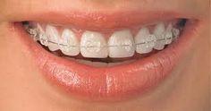 Phương pháp niềng răng bằng mắc cài sứ là một trong những kỹ thuật chỉnh nha thẩm mỹ mang lại kết quả tốt đẹp cho bệnh nhân, giúp họ có cơ hội sở hữu một hàm răng đều đặn và chắc khỏe để khoe nụ cười xinh tươi tắn, thu hút mọi ánh nhìn của người đối diện...
