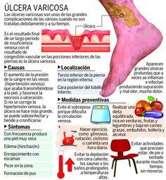 Detecte a tiempo una úlcera varicosa