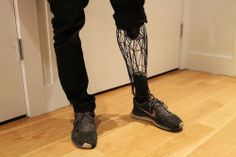 "syfycity: "" 3D printed prosthesis. http://syfycity.tumblr.com """