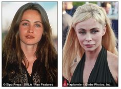 French beauty Emmanuelle Béart launches campaign against plastic surgery after her looks are ruined by botched ops Botched Plastic Surgery, Bad Plastic Surgeries, Plastic Surgery Gone Wrong, Bad Celebrity Plastic Surgery, Emmanuelle Béart, Facial Exercises, Lip Injections, French Beauty, Lip Fillers