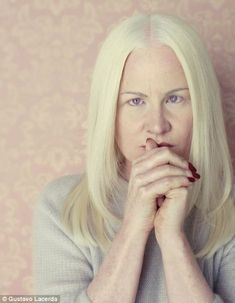 Ridiculed, misunderstood and feared for their 'magical powers': Artist's poignant pictures of sufferers of albinism
