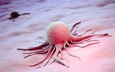 Cómo algo tan dañino puede ser tan bello... Microscope Picture of A Cancer Cell