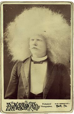 Unzie, The Albino Aboriginal - PROJECT B - Limited Edition Prints, Vintage Photographs, Shop Collections