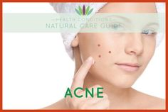 Homemade Acne Treatment - Discover Some Great Tips To Get Rid of Acne From Your Face -- More info could be found at the image url. #gluta