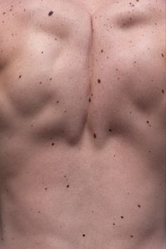 Moles and Freckles. Photographie Art Corps, Just In Case, Just For You, New Girl, Body Parts, Freckles, Human Body, At Least, Beauty