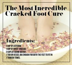 Treat your cracked heels with a little vinegar and Listerine (really! 21 Foot Care Tricks To Treat Your Tired And Sore Feet Health Remedies, Home Remedies, Natural Remedies, Cracked Heel Remedies, Cracked Skin, Cracked Feet, Sore Feet, Organic Herbs, Health And Beauty Tips