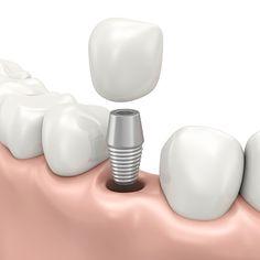 dental-implants-costa-rica-1