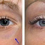 Derma Fillers Before and After Photos - Inverness Dermatology and Laser