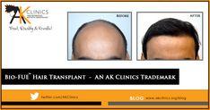 Hair Transplant - An AK Clinics trademark Hair Transplant In India, Fue Hair Transplant, Losing Hair Women, Hair Loss Women, Bad Wigs, Hair Loss Medication, Hair System, Hair Falling Out