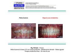 Casi clinici ortodontici Affollamento dentale http://www.studiodentisticobalestro.com/2015/05/palato-ogivale.html