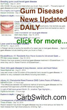Gum disease remedies ►♥◄ targeted low carb or no carb Recipes, Infographics & DAILY nutritional science news updates to help you or a loved one ►♥◄ #carbswitch Gum Disease news DAILY updates at http://carbswitch.com/2014/09/22/gum-disease-gum-disease-remedies/ Please Repin ►♥◄ Health News: Diets Food Updated DAILY - Diets for Women: Best Diet Plan Best Diet Foods
