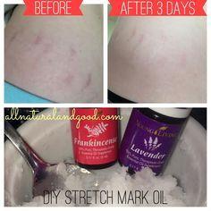 DIY Stretch Mark Remedy - All Natural & Good www.allnaturalandgood.com