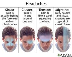 Chinese herbal medicine, acupuncture and cupping can be great for all types of headaches! There can be dietary influences as well that could be the cause of each of these.