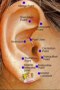 "Weight Loss Tips Image Gallery ""Some believe that an ear staple will suppress a person's appetite."" From http://health.howstuffworks.com/"
