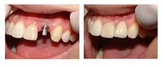 Dentaltown - Most Epic Before & After Dental Implants Cases!