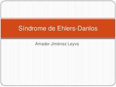 Síndrome de ehlers danlos clasico