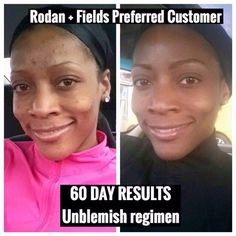 Changing skin..changing lives AGAIN! Melissa Joy is a Personal Trainer who was constantly battling clogged pores and breakouts. She decided to take the 60 day challenge and used Rodan + Fields UNBLEMISH Regimen. Just look at her results... Gorgeous!! LOVE that RADIANT GLOW!! Nothing like the clear skin confidence that UNBLEMISH delivers! Are you ready to give it a try? With our 60 Day money back guarantee you have nothing to lose, and SO MUCH to gain! Tchau.myrandf.com