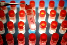 Stem cell research, Scientists uncovered promising development