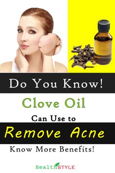 Many People Believe That Clove Essential Oil Helps to Remove Acne. Read More To Know More Benefits of Clove Oil. Essential Oils For Face, Clove Essential Oil, Essential Oil Uses, Clove Oil Uses, Clove Oil Benefits, Tooth Pain, Remove Acne, Blood Pressure, Beauty Skin