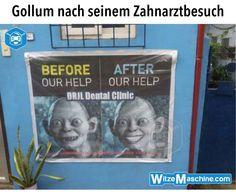 Gollum nach seinem Besuch beim Zahnarzt - Weße Zähne HDR