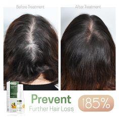 Hairdo For Long Hair, Grow Long Hair, Castor Oil For Hair Growth, Hair Growth Oil, Hair Growth Solution, Hair Growing Tips, Hair Up Styles, Hair Style, Regrow Hair