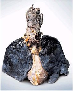 This is what lung cancer looks like, not so pretty huh?
