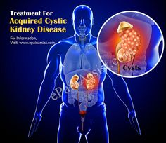 Learn more about Acquired Cystic Kidney Disease (ACKD), Possible Causes, Symptoms, Diagnosis, Treatment. Abdominal Pain, Kidney Disease, Learning, Studying, Teaching, Upset Tummy, Onderwijs