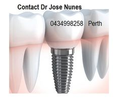 The Best Dental Implant Clinic in Perth. Dental surgery is his passion and he has spent many years mastering dental implant placements. Dental Implant Procedure, Teeth Implants, Dental Surgery, Nose Surgery, Laser Eye Surgery Cost, Affordable Dental Implants, Dental Bridge, Dental Crowns, Cosmetic Dentistry