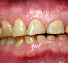 Home Remedies for Teeth Grinding-Teeth grinding is a bad habit that happens mostly at night while you are asleep.  To help break this damaging practice, you might want to get familiar with home remedies for teeth grinding #teeth #grinding