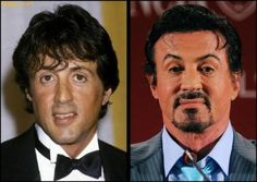 Sylvester Stallone Plastic Surgery Then and Now Always interesting what you can find when you type in surgeons and other related terms