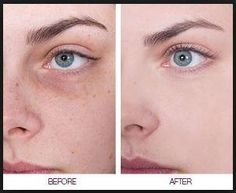 Remedies to Get Rid of Brown Spots on Skin