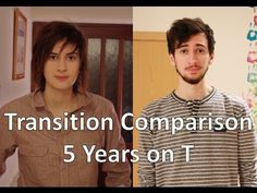 FTM Transgender: 5 Years on Testosterone Comparison - YouTube