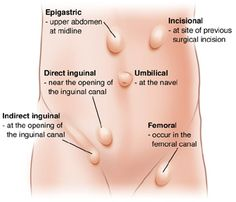Types/Locations of Hernia