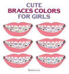 braces colors for girls braces colors for girls Braces Rubber Bands, Braces Bands, Braces Tips, Dental Braces, Teeth Braces, Braces Smile, Pink Braces, Braces And Glasses, Braces Problems